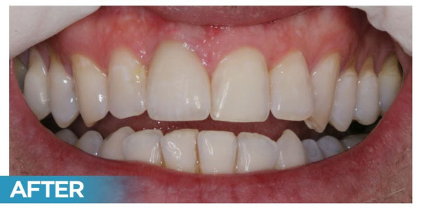 Nava Dental After Case