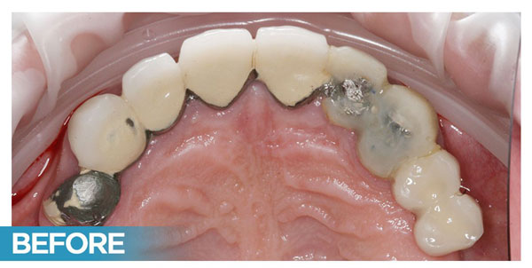 Nava Dental Before Case